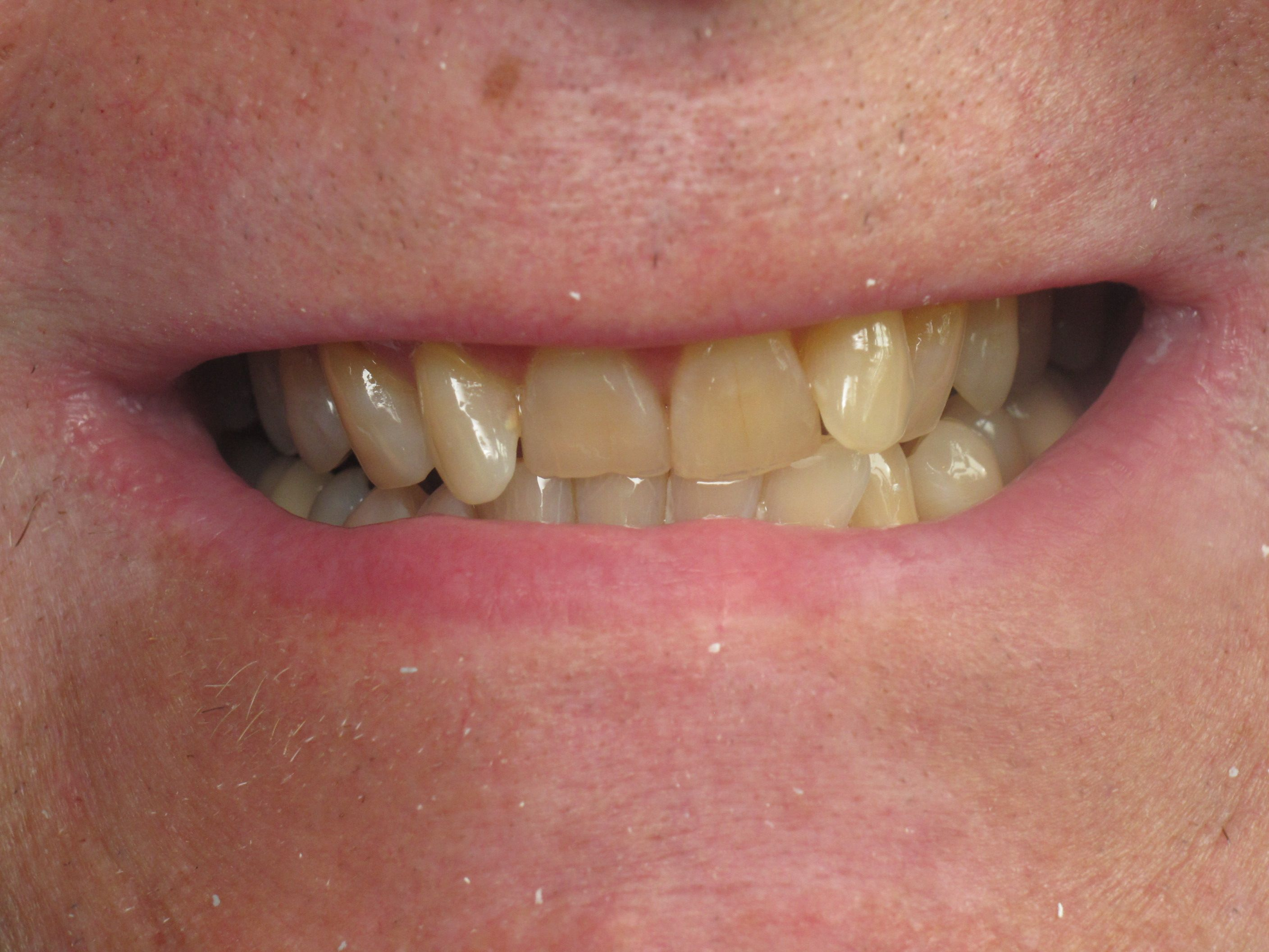 patient with yellow, misshapen teeth