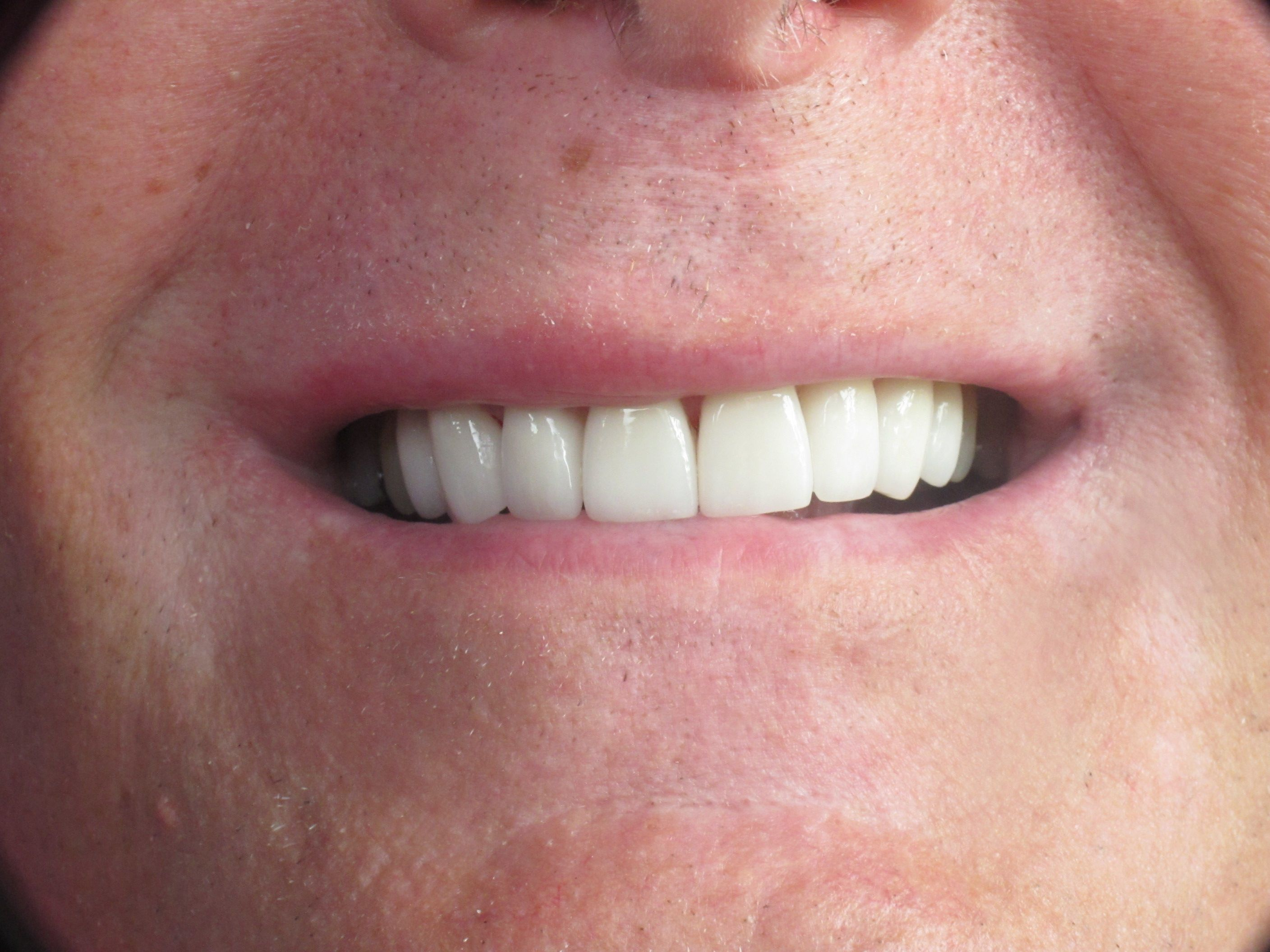 patient with porcelain veneers