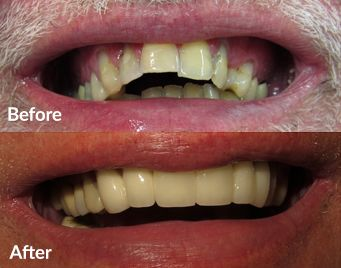 Photo of oral surgery patients before and after treatment