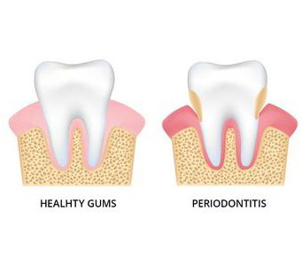 Illustration showing healthy and damaged gums