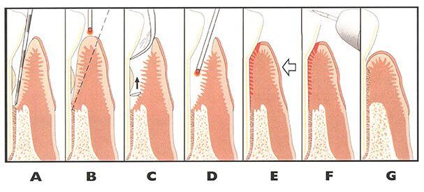 laser perio care