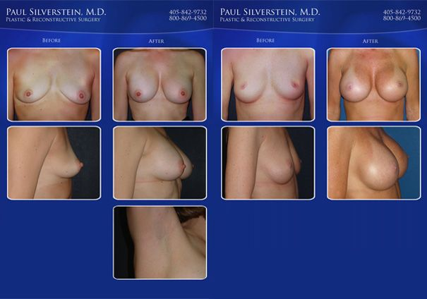 Breast Augmentation Before and After Photo - Oklahoma City