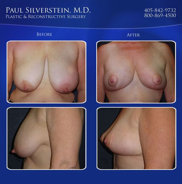 Breast Lift Before and After Photo - Oklahoma City