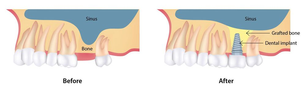 Before and after sinus lift