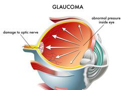 Illustration showing inside of eyeball with high pressure and optical nerve damage due to Glaucoma.