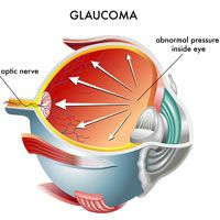 3-D illustration of the inside of an eyeball suffering from glaucoma