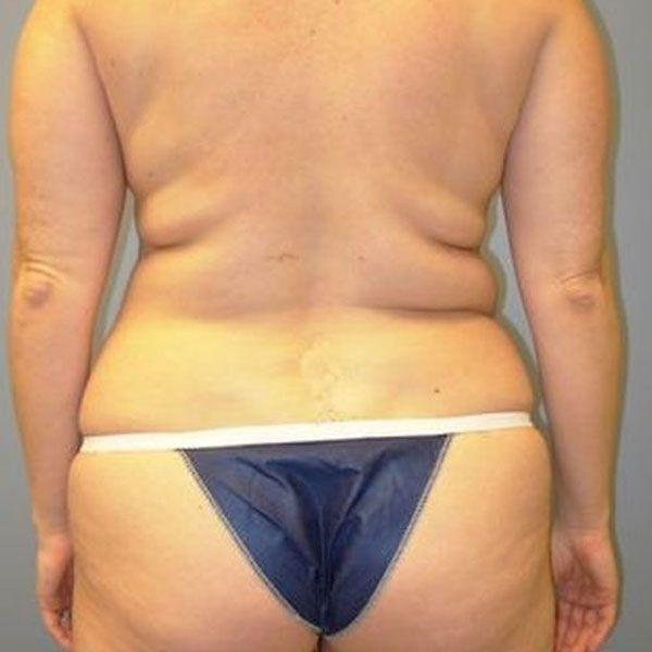 Liposuction before photo