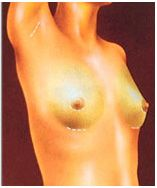 Breast Augmentation incision illustration