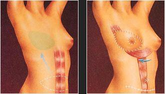 Breast Reconstruction illustration