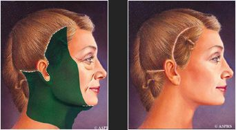 Illustration of incision marks and surgery area for face lift procedure