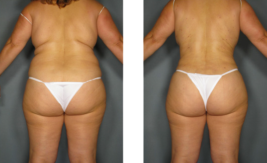 before and after liposculpture