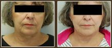 A set up photos showing how an older lady with short hair had her wrinkled neck and chin smoothed out.