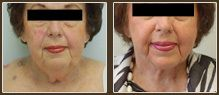 A set of pictures to show how an older woman's neck fat was made tighter.