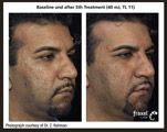 Fraxel®‎ Laser Treatment Before and After 1