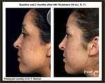 Fraxel®‎ Laser Treatment Before and After Photo 2