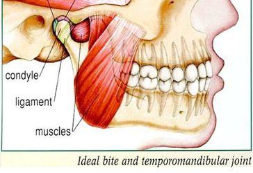 Diagram of TMJ disorder