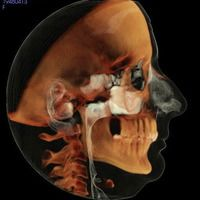 Diagram of human head anatomy