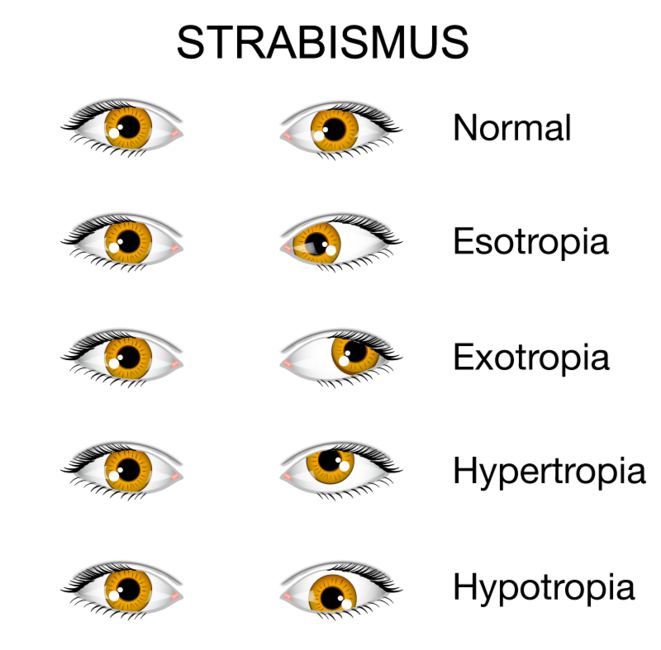 Visual explanation of types of strabismus