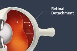 A diagram that displays where retinal detachment occurs within the eye.