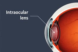 A picture of a transparent eye ball that points out the location of the Intraocular lens.