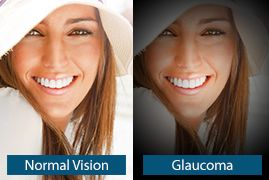An image showing what the symptoms of glaucoma may look like