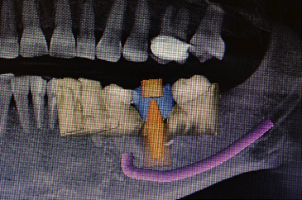 Image of implant and jaw