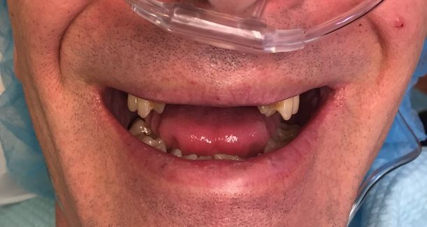 A patient with missing front teeth.