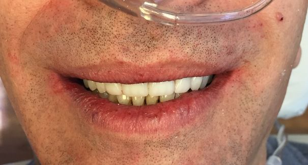 A patient smiling after undergoing All-on-4® treatment.
