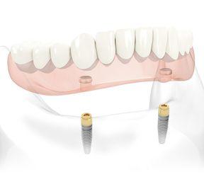 snap on denture from nobel biocare