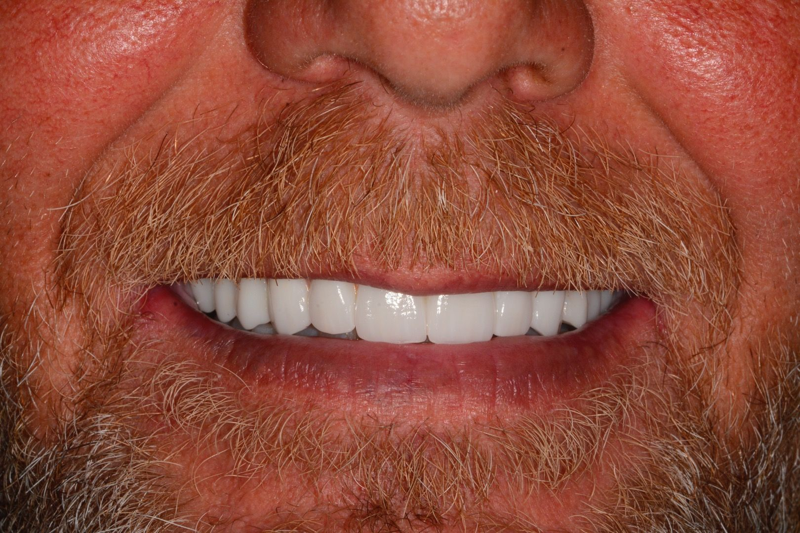 zirconia final dental implant