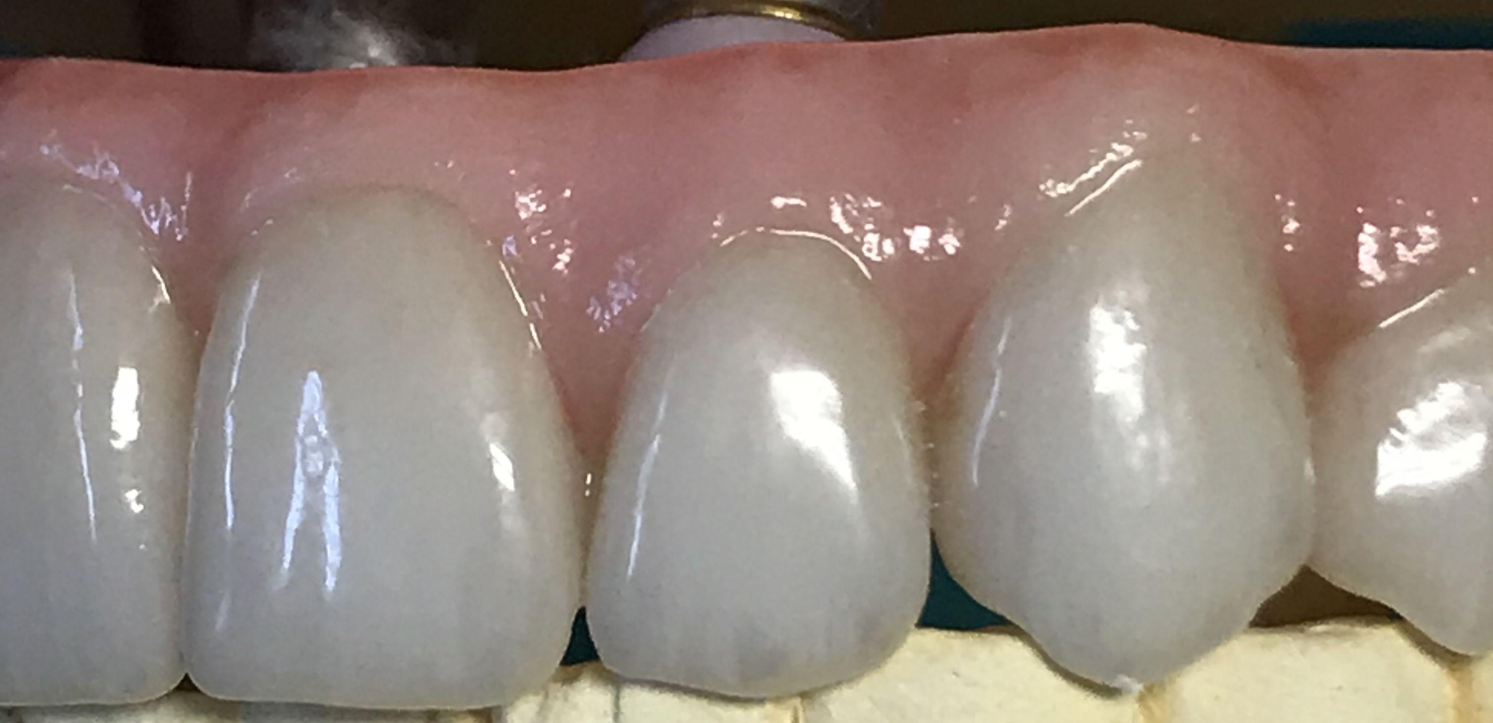 All on Four Zirconia Porcelain Prosthesis