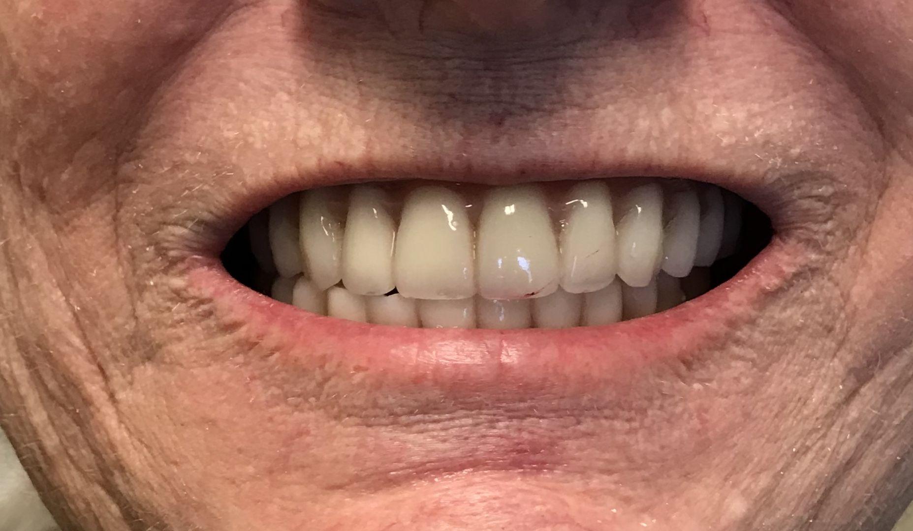 Dental Implant Rehabilitation