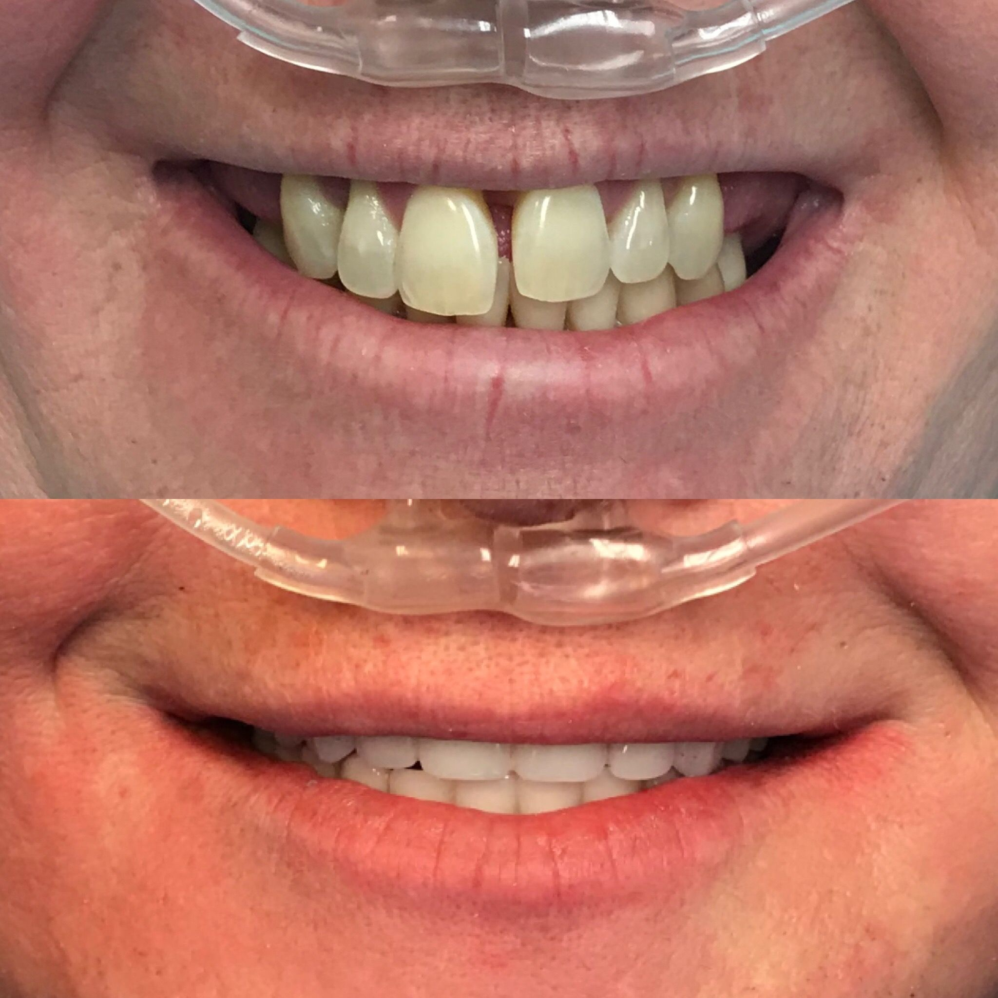 Upper and Lower jaw All on Four Dental Implant