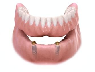 Image demonstrating how implant-supported dentures are fitted onto the gums.