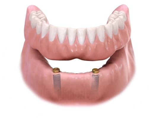 3D illustration of dental implants placed in the jaw.