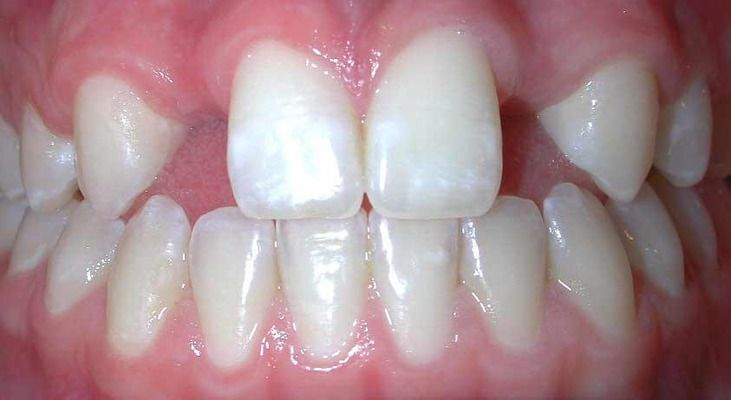 Benefits of dental implants: closeup of a patient's teeth.