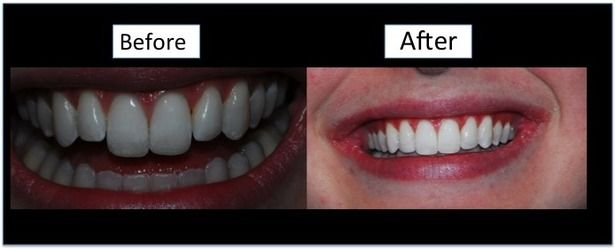 A before and after image demonstrating the effects of dental bonding