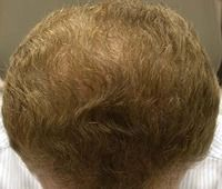 After Case 3: Top of man's head showing patches filled with hair regrowth