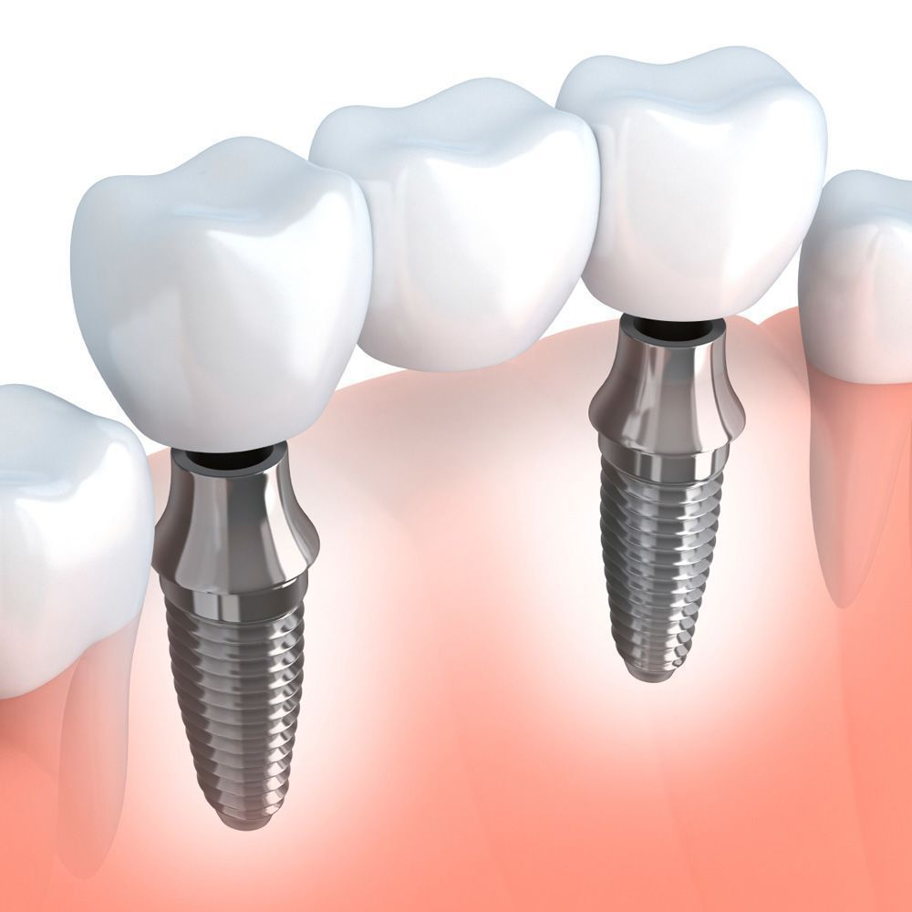 3-D illustration demonstrating how implant-supported bridges fit into the jaw.