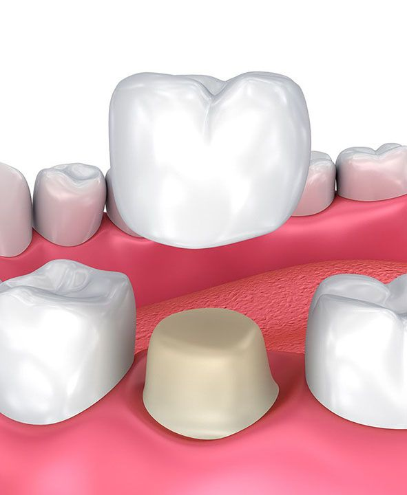 Illustration of crown being placed over tooth