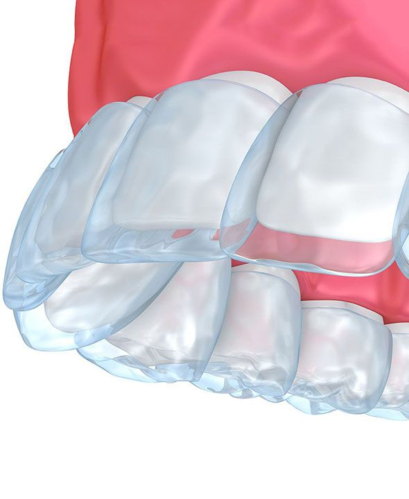 Illustration of clear aligner over teeth