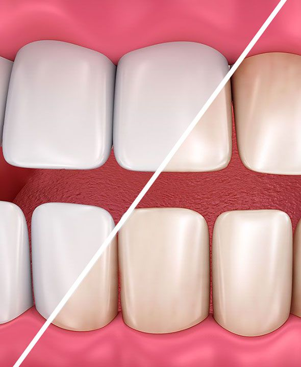 Illustration of before and after teeth whitening