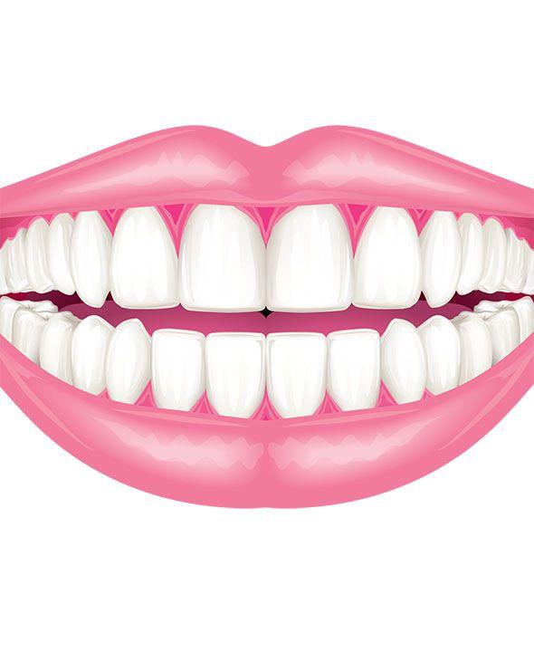 Illustration of straight, white teeth