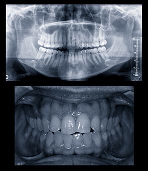 Full mouth X-ray