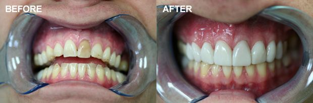 teeth before and after smile makeover