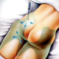 An illustration highlighting a buttocks receiving tumescent liposuction.