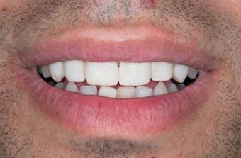 Cosmetic Dentist: Image of patient's mouth after veneers are applied.