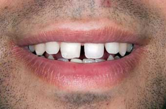 Cosmetic Dentist: Image of patient's mouth before veneers are applied.