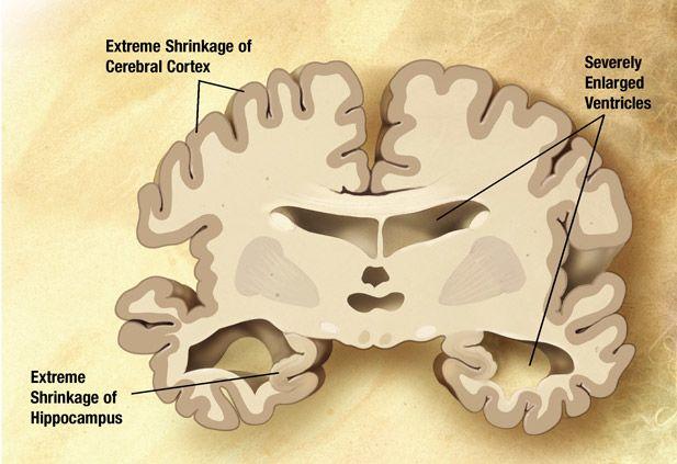 Image of Alzheimer's patient brain