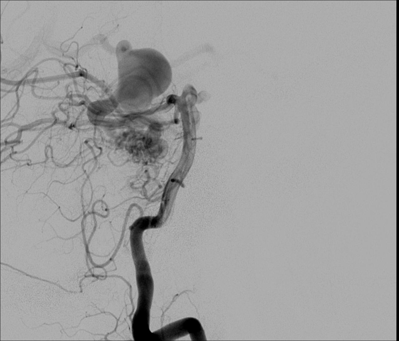 Superior cerebellar artery aneurysm